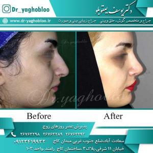 nose surgery (215)