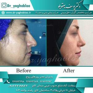 nose surgery (218)
