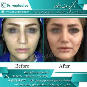 nose surgery (225)