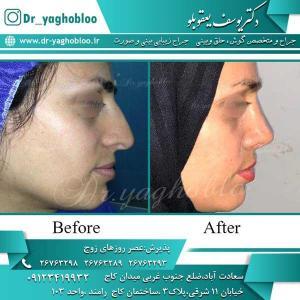 nose surgery (230)