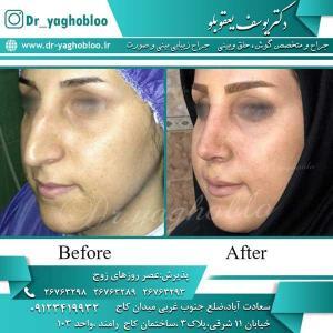nose surgery (235)