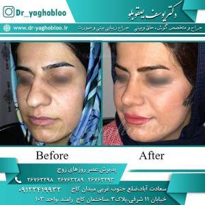nose surgery (247)