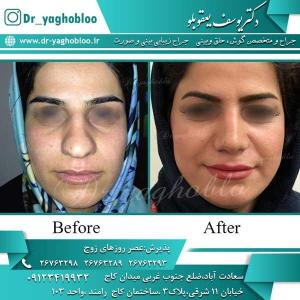 nose surgery (250)