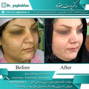 nose surgery (256)