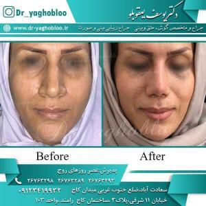 nose surgery (261)
