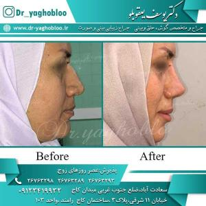 nose surgery (263)
