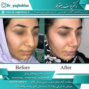 nose surgery (265)