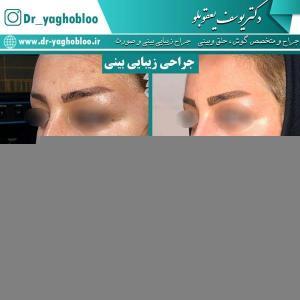nose surgery (27) (1)