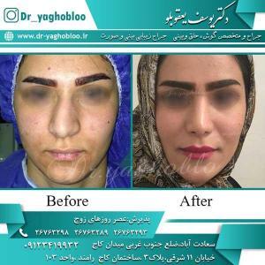 nose surgery (270)