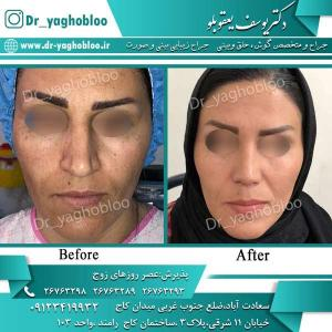 nose surgery (273)