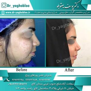 nose surgery (277)