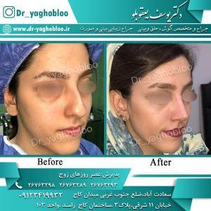 nose surgery (280)