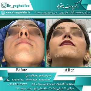 nose surgery (281)