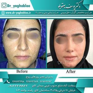 nose surgery (286)