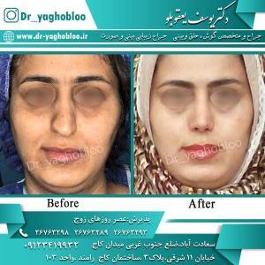 nose surgery (296)