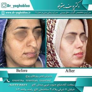 nose surgery (297)