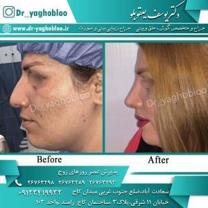 nose surgery (305)
