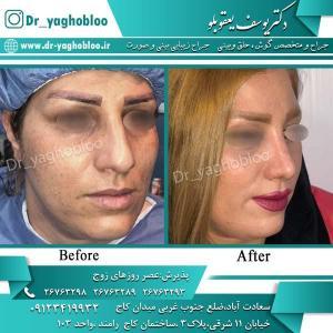 nose surgery (306)