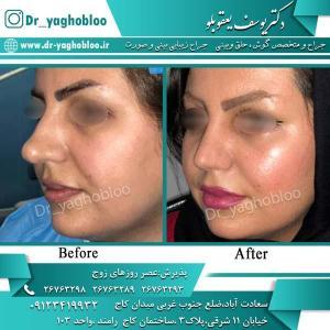 nose surgery (310)