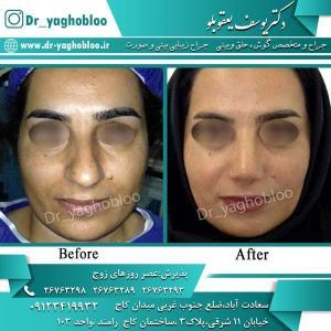 nose surgery (312)
