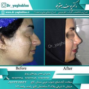 nose surgery (313)