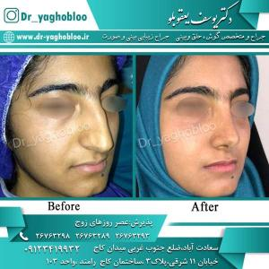 nose surgery (315)