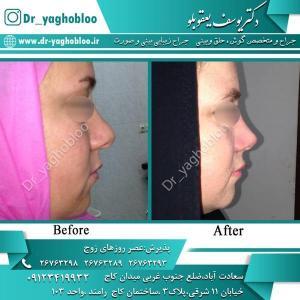 nose surgery (316)