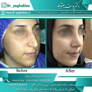 nose surgery (320)