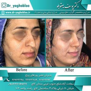 nose surgery (322)