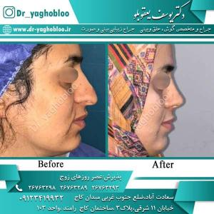 nose surgery (323)