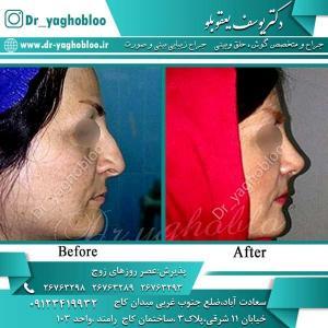 nose surgery (324)