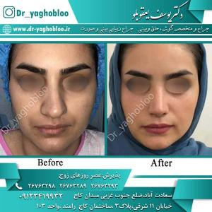 nose surgery (325)