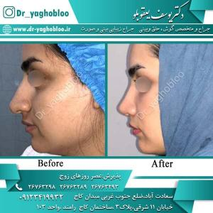 nose surgery (327)