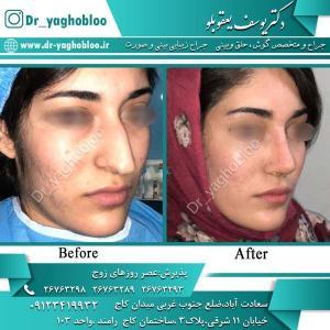 nose surgery (329)