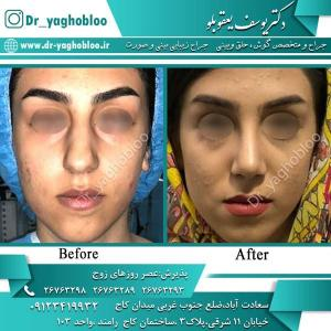 nose surgery (334)