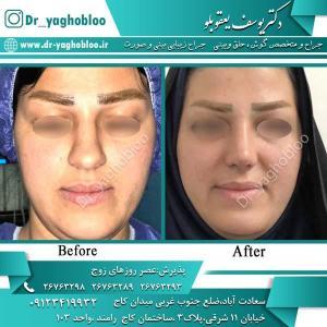 nose surgery (337)