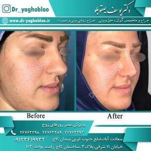 nose surgery (338)
