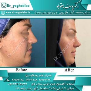 nose surgery (339)