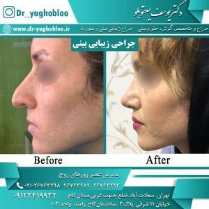 nose surgery (34) (1)