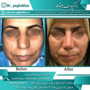 nose surgery (340)