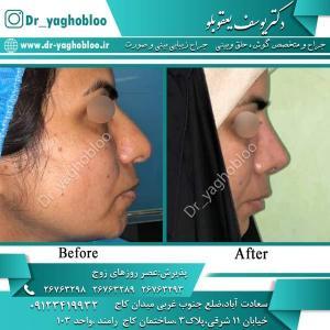 nose surgery (342)