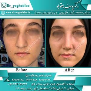 nose surgery (345)