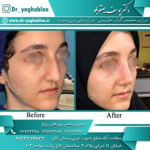 nose surgery (346)
