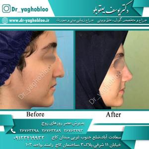 nose surgery (347)