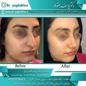 nose surgery (349)