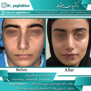 nose surgery (351)