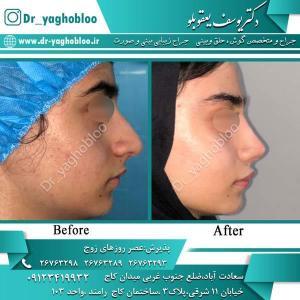 nose surgery (353)
