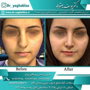 nose surgery (357)