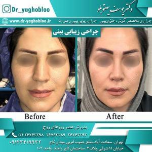 nose surgery (36) (1)