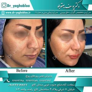 nose surgery (360)